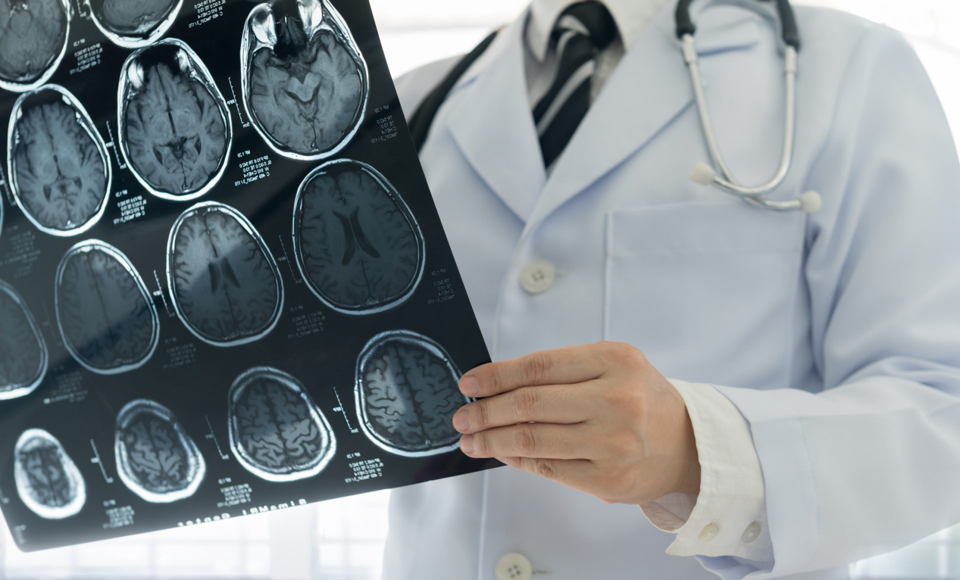 Everything you need to know about spotting the signs of stroke, and how to reduce your risk